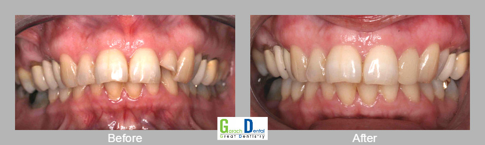 A fractured tooth can be crowned on the same day using our Cerec 3D one visit technology