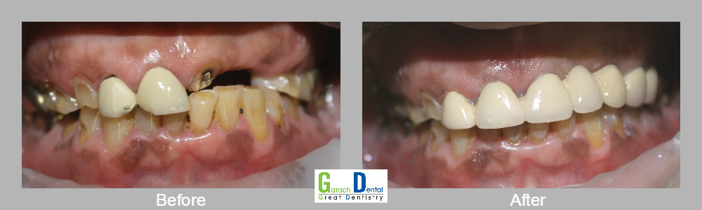 Bridging a gap and removing old crowns