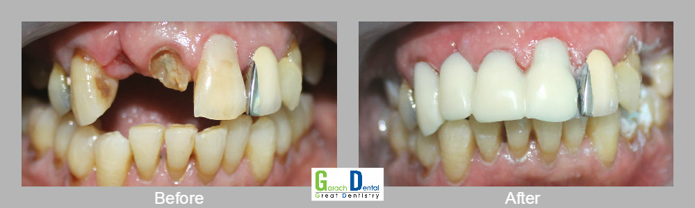 Creating a temporary bridge in one visit after an extraction using our Cerec 3D technology