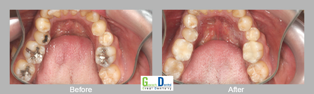 Replacement of amalgam-silver fillings with tooth coloured resin filling material