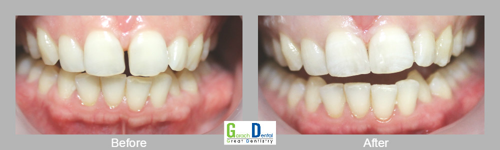 Replacing a diastema gap by bonding resin fiilling material on either side of the teeth