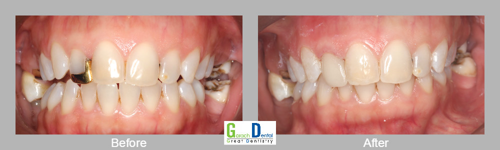 Replacing gold work with an aesthetic porcelain veneer using our Cerec 3D technology in one visit
