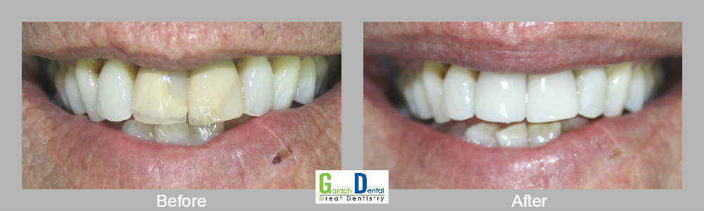 Replacing old porcelain fused to metal crowns with porcelain crowns