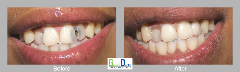 Restoring teeth with cavities to their normal health and appearance