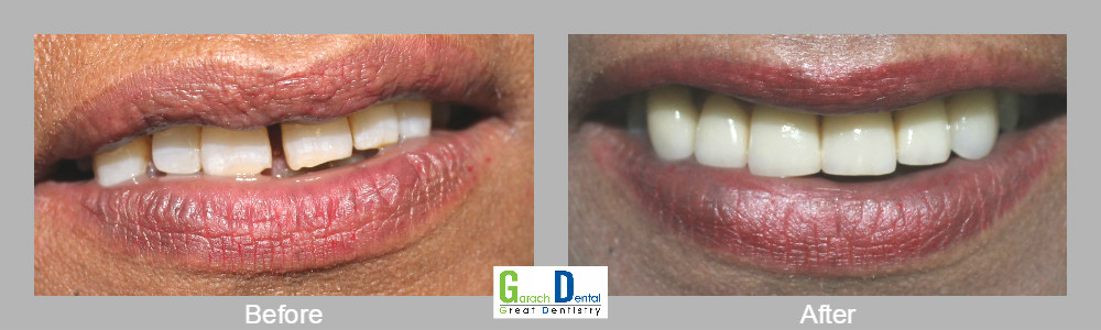 Smile makeovers using our Cerec 3D technology in one visit