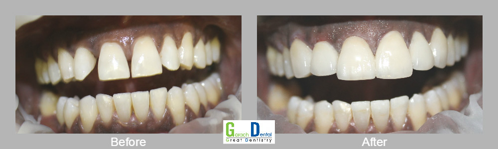 Smile makeovers using our Cerec 3D technology one day before a wedding!!!