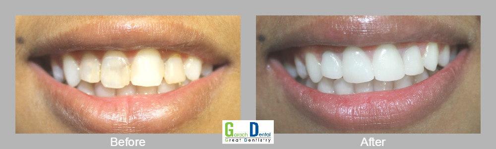 Smile makovers in one appointment using our Cerec 3D technology
